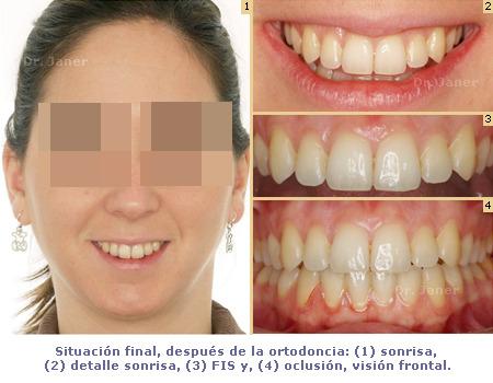 Situación final de caso de apiñamiento con ortodoncia lingual_JanerOrtodoncia