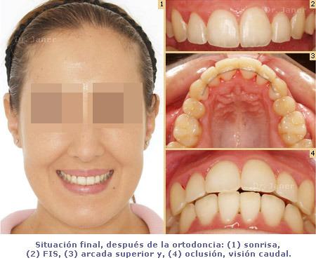 Situación final después de la ortodoncia en un caso de apiñamiento dental resuelto con Invisalign