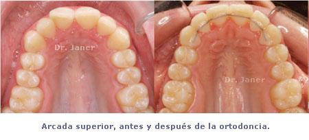 Arcada superior antes y después de la ortodoncia lingual en el caso de apiñamiento dental con stripping