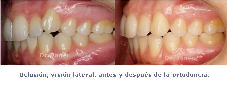Olcusión visión lateral antes y después de la ortodoncia del caso de apiñamiento con ortodoncia lingual_JanerOrtodoncia