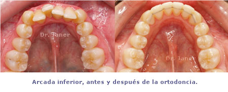 Arcada inferior antes y después de la ortodoncia lingual en el caso de apiñamiento dental con stripping