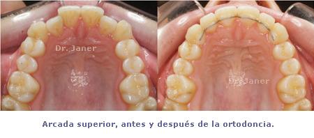 Arcada superior antes y después de la ortodoncia del caso de apiñamiento con ortodoncia lingual_JanerOrtodoncia