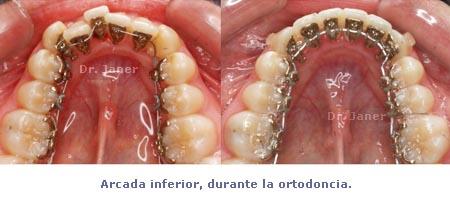 Arcada inferior durante la ortodoncia lingual en el caso de apiñamiento dental con stripping