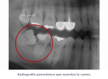 Radiografía panorámica de paciente mostrando caries