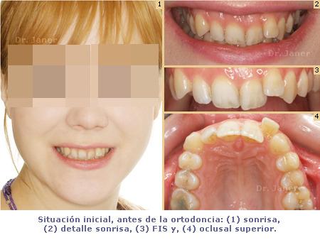 Situación inicial antes de la ortodoncia en un caso de apiñamiento dental, resuelto con ortodoncia lingual_Janerortodoncia