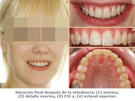 Situación final después de la ortodoncia en un caso de apiñamiento dental, resuelto con ortodoncia lingual