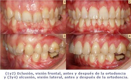 oclusión, visión frontal y lateral antes y después de la ortodoncia en un caso de apiñamiento dental, resuelto con ortodoncia lingual_JanerOrtodoncia