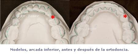modelos arcada inferior antes y después de la ortodoncia_JanerOrtodoncia
