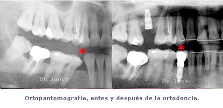 ortopantomografía antes y después  de la ortodoncia_JanerOrtodoncia