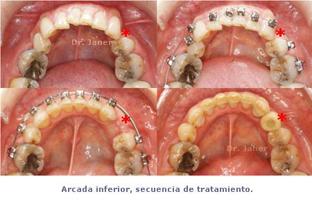 Secuencia de arcada inferior durante la ortodoncia JanerOrtodoncia
