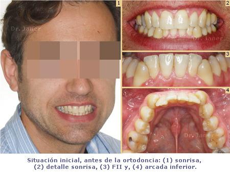 Situación inicial de caso de apiñamiento resuelto con ortodoncia y extracción incisivo inferior_JanerOrtodoncia