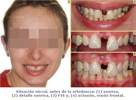 situacion inicial antes de la ortodoncia en caso de periodontitis con diastema resuelto con ortodoncia_JanerOrtodoncia