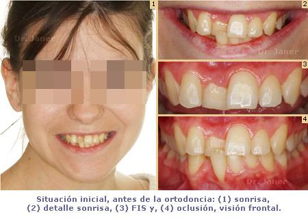 situacion inicial antes de la ortodoncia en el  caso resuelto de mordida curzada_JanerOrtodoncia
