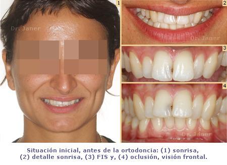 caso resuelto con ortodoncia de apiñamiento y resalte dental marcado_situación inicial_JanerOrtodoncia