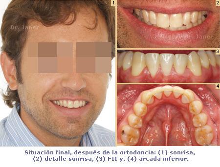 Situación final de caso de apiñamiento resuelto con ortodoncia y extracción incisivo inferior_JanerOrtodoncia