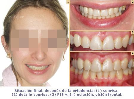 Situacion final despues de la ortodoncia en caso de periodontitis con diastema resuelto con ortodoncia_JanerOrtodoncia