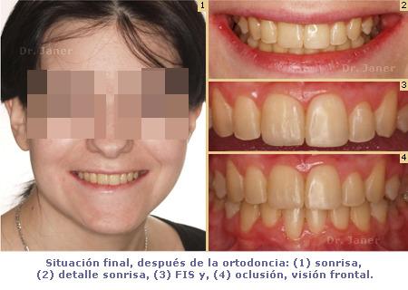 situacion final despues de la ortodoncia en el  caso resuelto de mordida curzada_JanerOrtodoncia