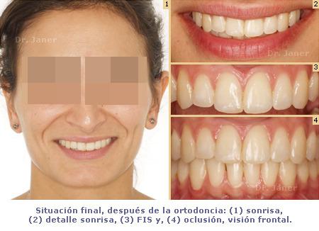 caso resuelto con ortodoncia de apiñamiento y resalte dental marcado_situación final_JanerOrtodoncia