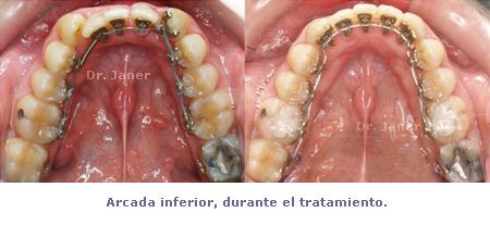 arcada inferior antes y despues de la ortodoncia en un problema de apiñamiento con extraccion de un incisivo inferior_JanerOrtodoncia