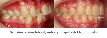 oclusion vision lateral antes y despues de la ortodoncia en el caso resuelto de mordida curzada_JanerOrtodoncia
