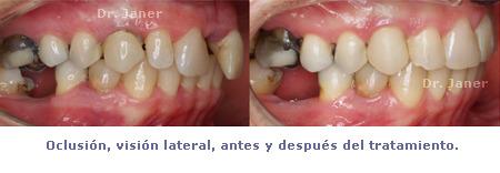 oclusion lateral antes y despues de la ortodoncia en caso de periodontitis con diastema resuelto con ortodoncia_JanerOrtodoncia