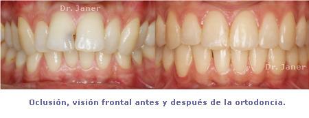 caso resuelto de apiñamiento y resalte dental marcado_oclusión visión frontal antes y después de la ortodoncia_JanerOrtodoncia
