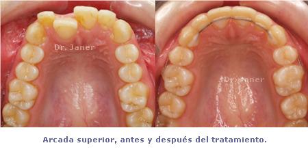 arcada superior antes y despues de la ortodoncia en el  caso resuelto de mordida curzada_JanerOrtodoncia
