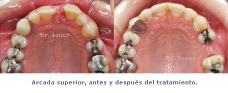 arcada superior antes y despues de la ortodoncia en caso de periodontitis con diastema resuelto con ortodoncia_JanerOrtodoncia