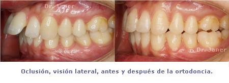 caso resuelto de apiñamiento y resalte dental marcado_oclusión visión lateral antes y después de la ortodoncia_JanerOrtodoncia