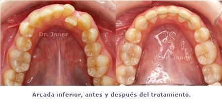 arcada inferior antes y despues de la ortodoncia en el caso resuelto de mordida curzada_JanerOrtodoncia