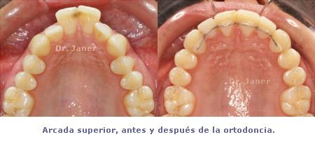 caso resuelto de apiñamiento y resalte dental marcado_arcada superior antes y después de la ortodoncia_JanerOrtodoncia