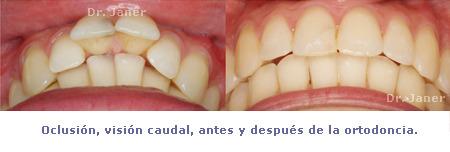 caso resuelto de apiñamiento y resalte dental marcado_oclusión visión caudal antes y después de la ortodoncia_JanerOrtodoncia