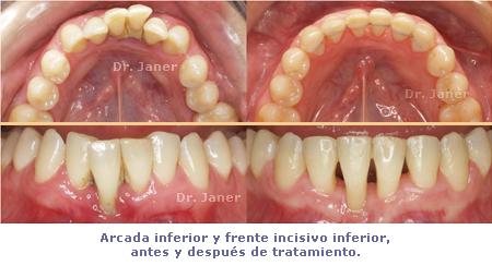 arcadas inferiores y FII antes y después del tratamiento_ JanerOrtodoncia