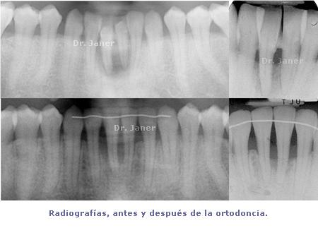 radiografias antes y después de la ortodoncia_JanerOrtodoncia
