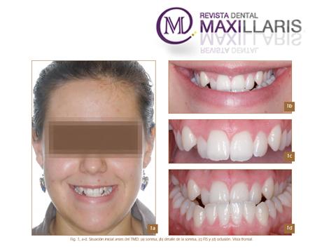 Artículo de Maxillaris del Dr. Janer