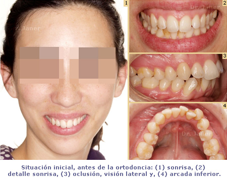 Situación inicial en caso de apiñamiento antes de la ortodoncia resuelto con invisalign_JanerOrtodoncia