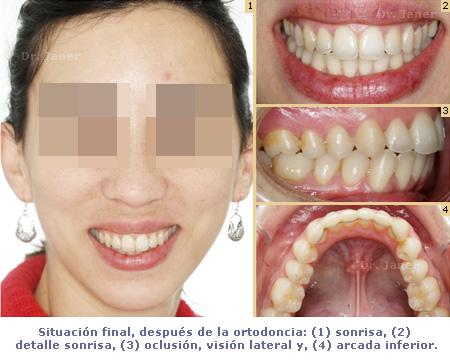 Situación final en caso de apiñamiento después de la ortodoncia resuelto con Invisalign_ Janerortodoncia