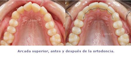 arcada superior antes y después ortodoncia con invisalign
