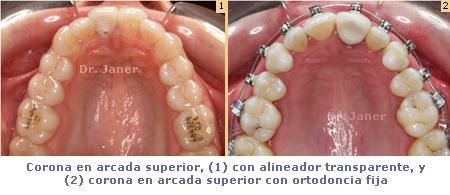 Coronas en diferentes tipo de ortodoncias