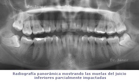 radiografia de las muelas del juicio impactadas_Janerortodoncia