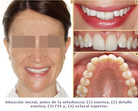 caso resuelto con lingual apiñamiento dental y stripping_ Janerortodoncia