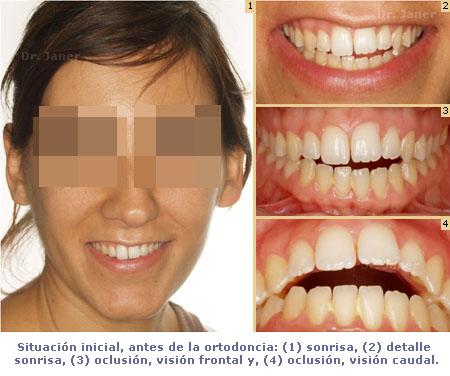 situación inicial de caso mordia abierta resuelto con ortodoncia_ JanerOrtodoncia