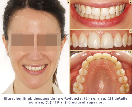 caso resuelto de lingual de apiñamiento y stripping dental_JanerOrtodoncia