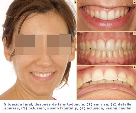 situación final de caso mordia abierta resuelto con ortodoncia_ JanerOrtodoncia