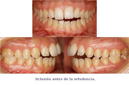 oclusión antes ortodoncia_ JanerOrtodoncia