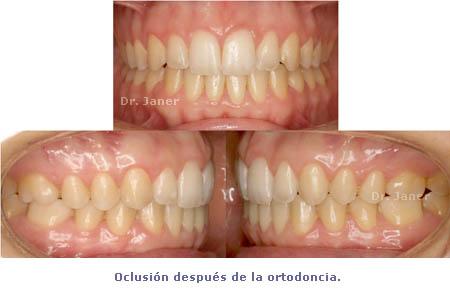 oclusión después ortodoncia_ JanerOrtodoncia