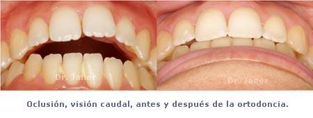 oclusión caudal antes y después ortodoncia_Janerortodoncia