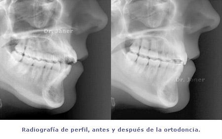 radiografía antes y después ortodoncia_JanerOrtodoncia