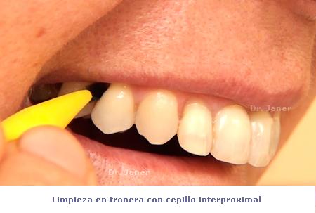limpieza con interproximal_janerortodoncia