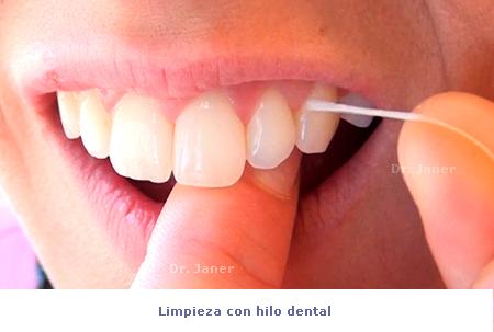 limpieza hilo dental_janerortodoncia